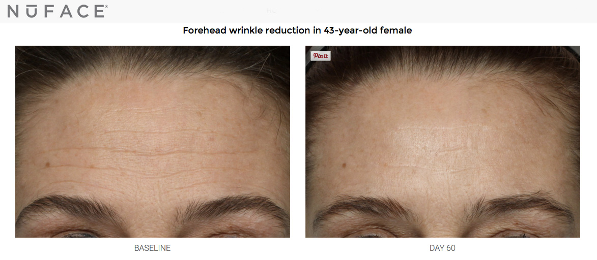 nuface_foreheadwrinkles
